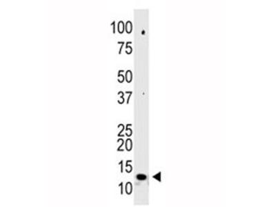 SUMO2 Antibody