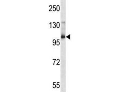 Aak1 Antibody