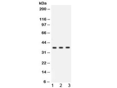 Cathepsin G Antibody