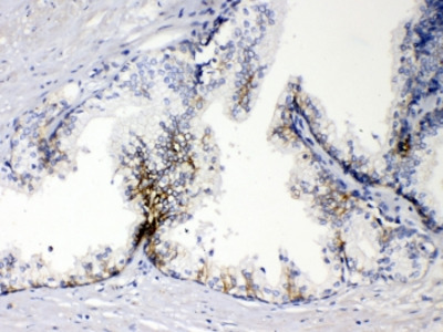 EpCAM Antibody