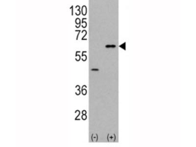 AKT3 Antibody