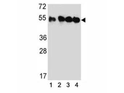 Tubulin beta 2C Antibody (TUBB2C)