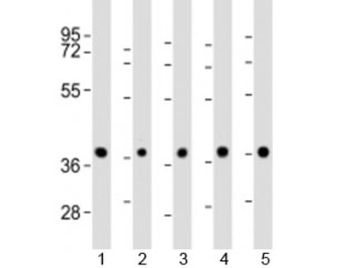 Protein Phosphatase 2A Antibody / PPP2R4