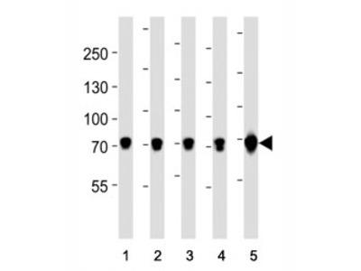 TRPV6 Antibody
