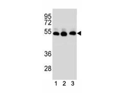 TUBB2B Antibody (Tubulin beta 2B)