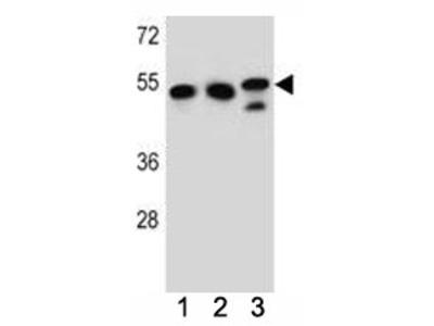 TUBB6 Antibody (Tubulin beta 6)
