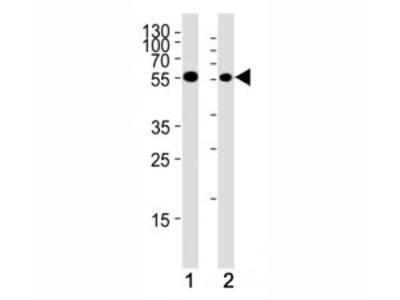 CHK1 Antibody