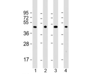 Thyroid hormone receptor alpha Antibody / THRA