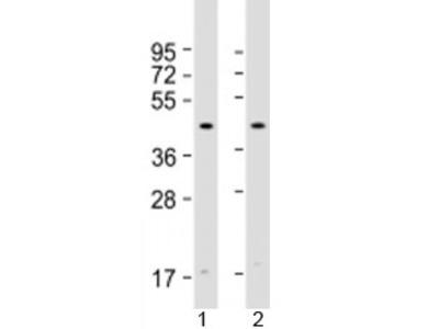 Atrogin 1 Antibody / FBXO32