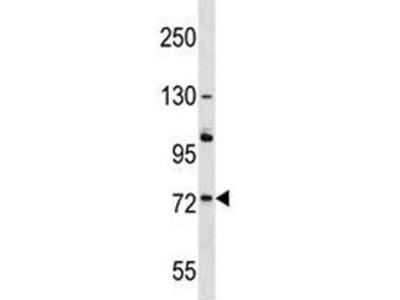 ACOX2 Antibody / Peroxisomal acyl-coenzyme A oxidase 2