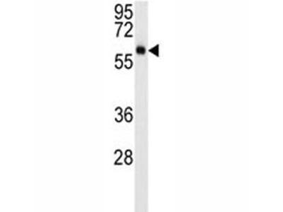 AKT3 Antibody (Mouse Monoclonal)