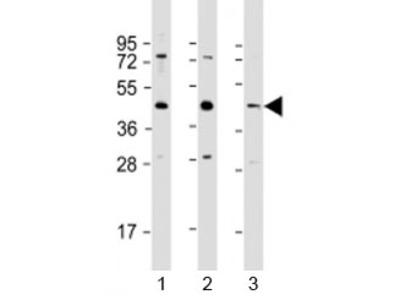 G6PC3 Antibody / Glucose-6-phosphatase 3
