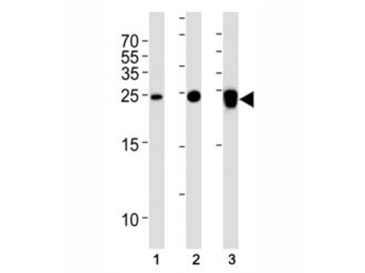 PGP9.5 Antibody (UCHL1) (Mouse Monoclonal)
