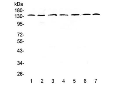 EIF2AK3 Antibody / PERK