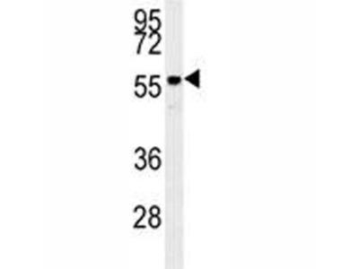 AKT2 Antibody (Mouse Monoclonal)