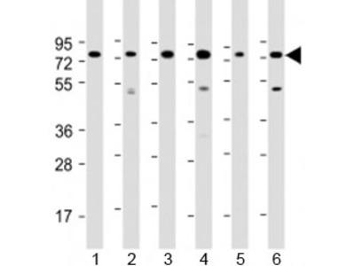 PABPC3 Antibody / Polyadenylate-binding protein 3