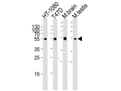 Tubulin alpha 6 Antibody (TUBA6)