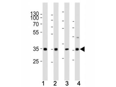 Cyclin D3 Antibody (CCND3)