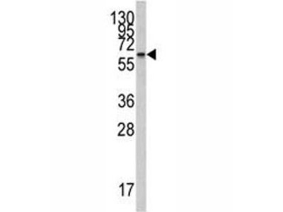 CYP26A1 Antibody