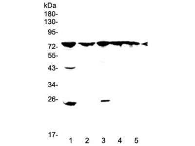 GRK2 Antibody / Beta-adrenergic receptor kinase 1