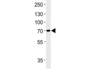 TAU Antibody (MAPT)