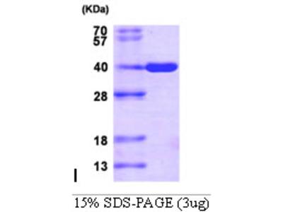 AKR1C3, 1-323aa, Human, His-tag, Recombinant, E Coli