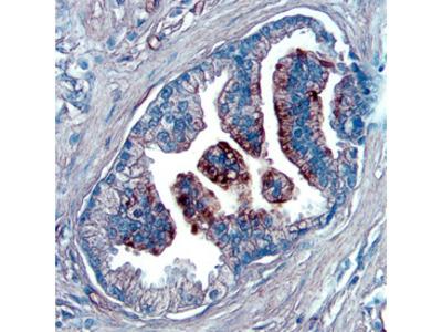 NOV / CCN3 Antibody
