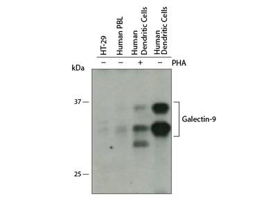 Human Galectin-9 Antibody