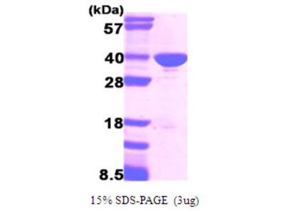GAPDH, 1-335aa, Human, Recombinant, E Coli