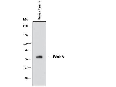 Human Fetuin A / AHSG Antibody