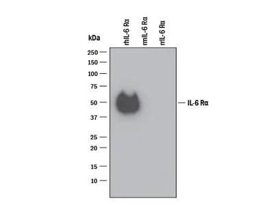 Human IL-6R alpha Antibody