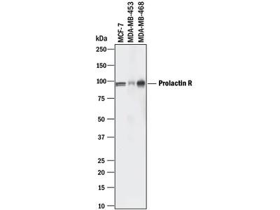 Prolactin R Antibody