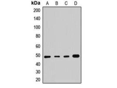 SMYD3 antibody