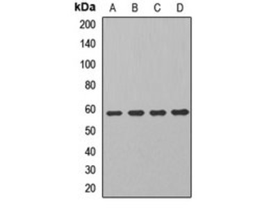 ALDH7A1 antibody