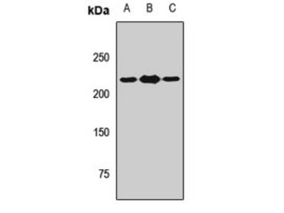 THADA antibody