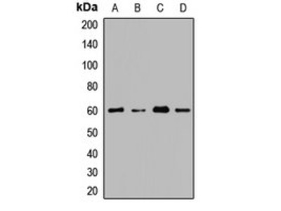 CDY1 antibody