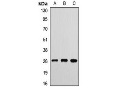 ETHE1 antibody