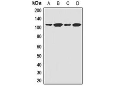FCRL3 antibody