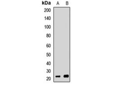 EXOSC1 antibody