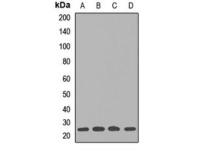 UBE2S antibody