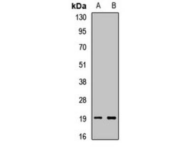 PTN antibody