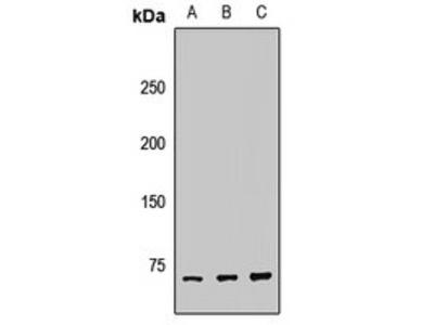 TRIOBP antibody