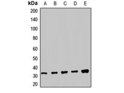 TRMT61A antibody