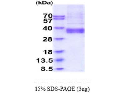 ART4 Recombinant Protein
