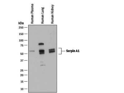 Serpin A1 / alpha 1-Antitrypsin Antibody