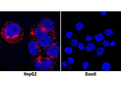 Human Osteopontin / OPN Antibody