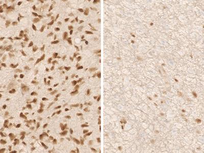 Anti-ATRX Antibody (Clone: AX1)