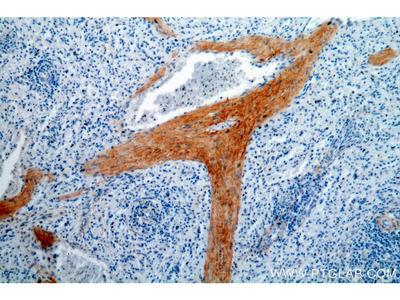 GFI1 antibody
