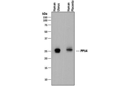 PP14 /Glycodelin Antibody