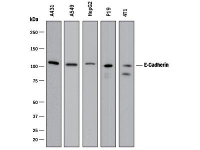 E-Cadherin Antibody
